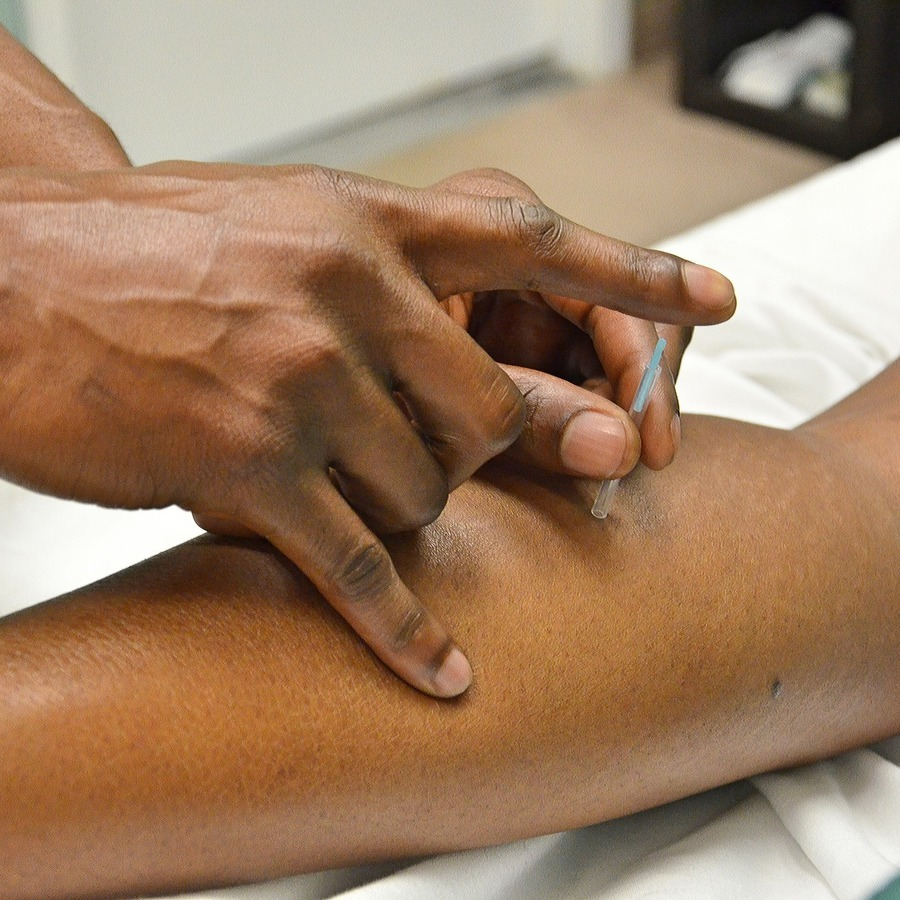 Acupuncture May Offer Relief for Wide Range of Issues