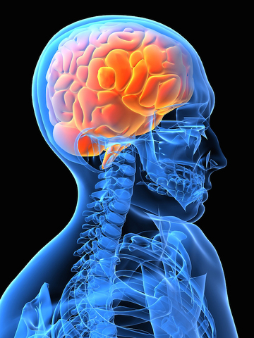 To Your Health: FAST, Can You Spot the Warning Signs When Someone is Having a Stroke?