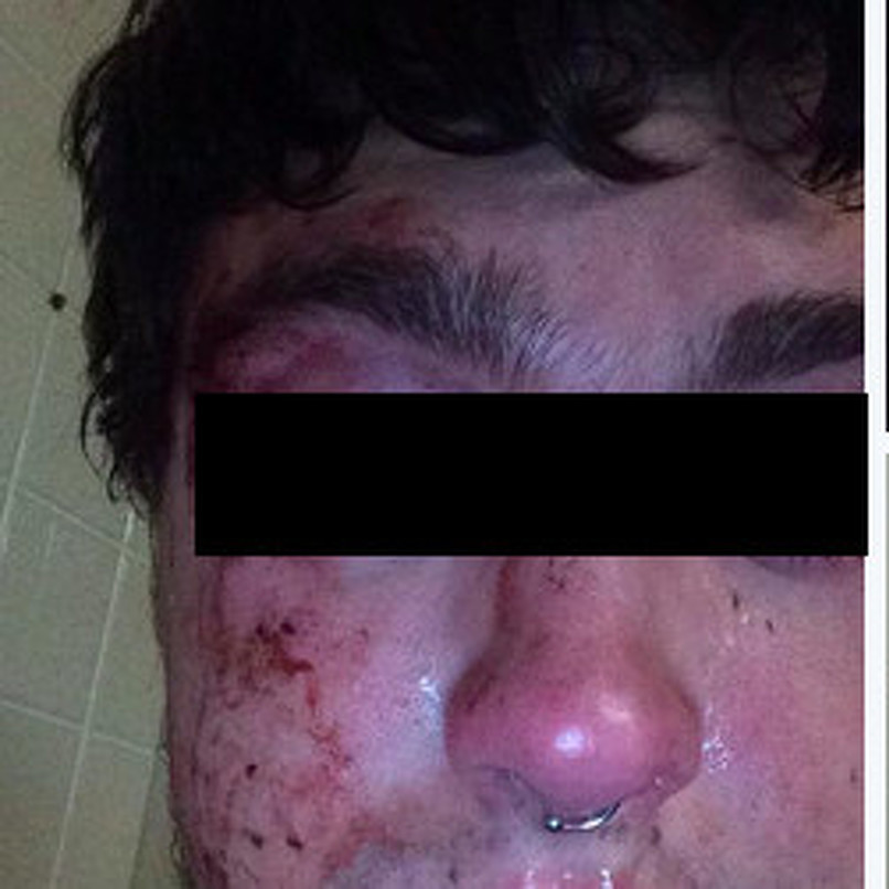 Police Investigating Alleged Anti-Gay Assault